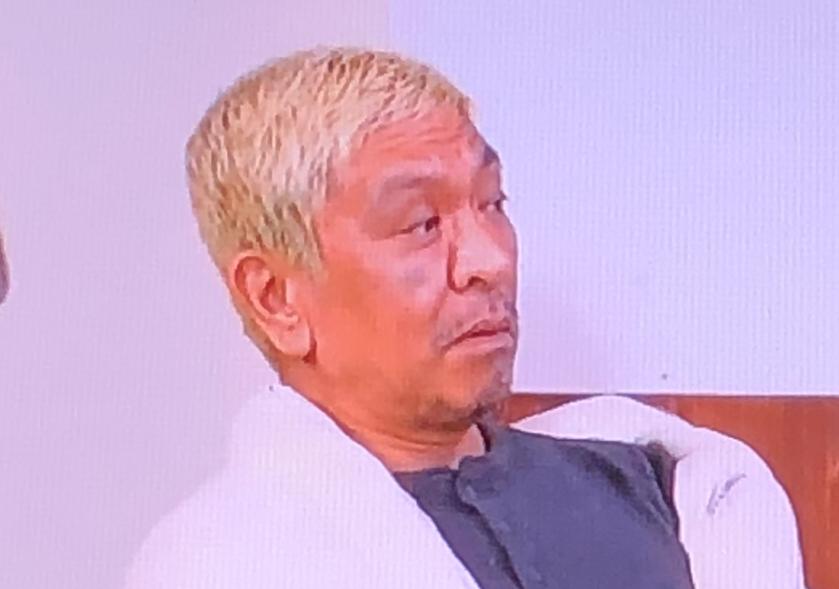 まっちゃん(松本人志)の右頬のシミ