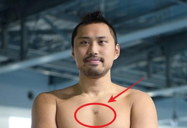 塩浦慎理はハーフで目は斜視で胸の傷は手術跡