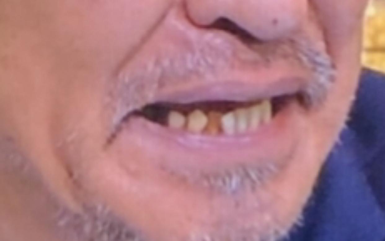 松本人志(まっちゃん)下の歯抜けて汚い